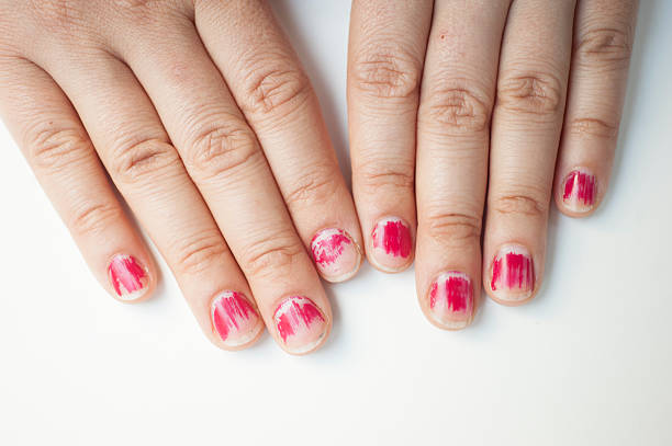 My nails chipped? What should I do?